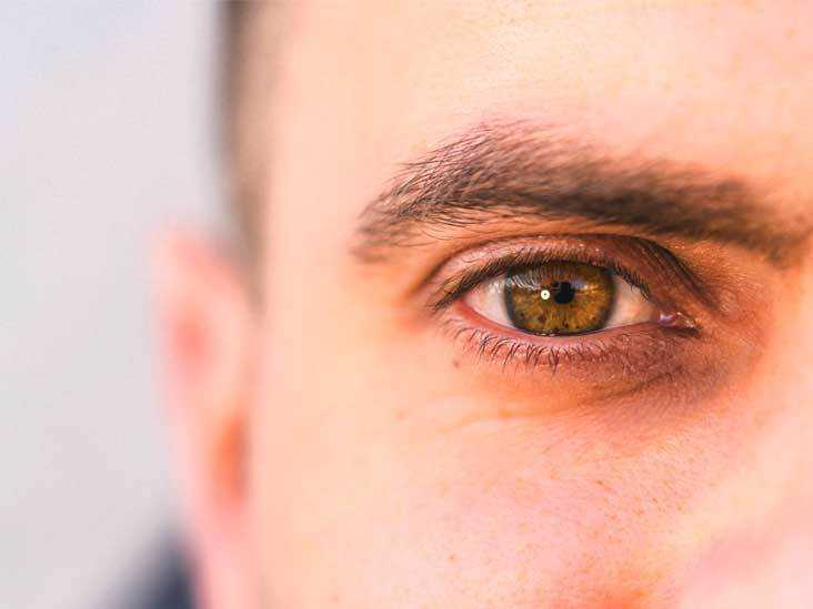 Кожа вокруг глаз шелушится thumbnail