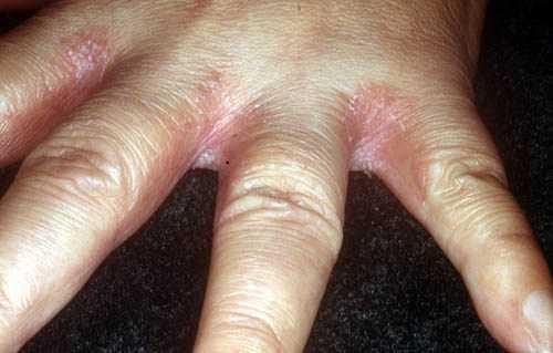 Между пальцами рук покраснение и шелушение фото
